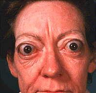 Del los efectos hipotiroidismo ojos en